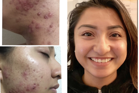 Breakouts During the Summer: What Causes It and How to Avoid It
