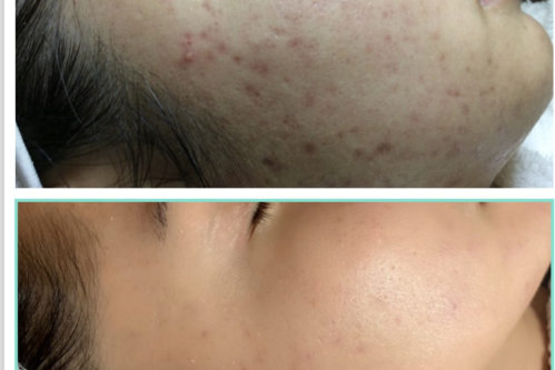 Ways to Stick to a Skincare Regimen